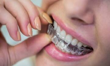 How much does Invisalign cost in Australia?